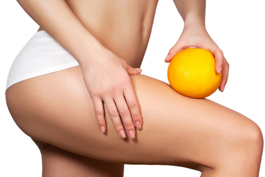 Adipolyse : technique anti-cellulite sûre