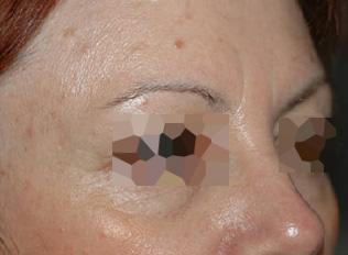 After-Toxine botulique - Front et yeux