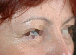 Before-Toxine botulique - Front et yeux