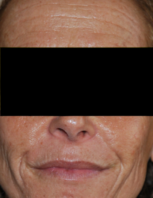 Before-Laser resurfacing