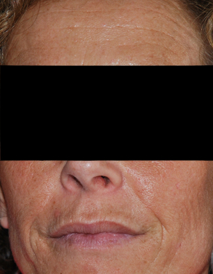 After-Laser resurfacing