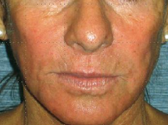 After-Augmentation sub-malaire - Acide hyaluronique