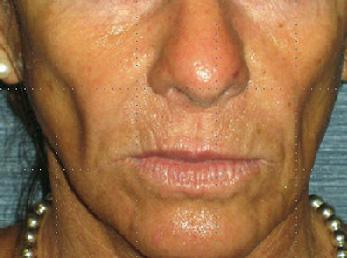 Before-Augmentation sub-malaire - Acide hyaluronique
