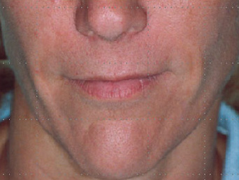 After-Acide hyaluronique - Sillons naso-géniens