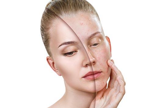 Laser fractionné et cicatrices d'acné